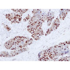 Antibodies to Ki-67, clone (GM001) mouse, concentrated